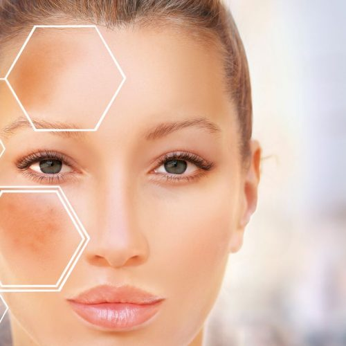 Laser, a Treatment for Melasma